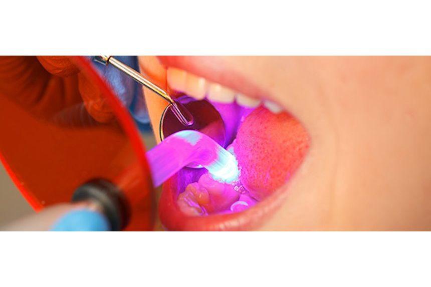 Diş Hekimliğinde Lazerler